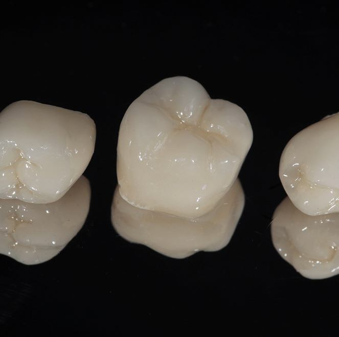 Three porcelain dental crowns sitting on a reflective surface