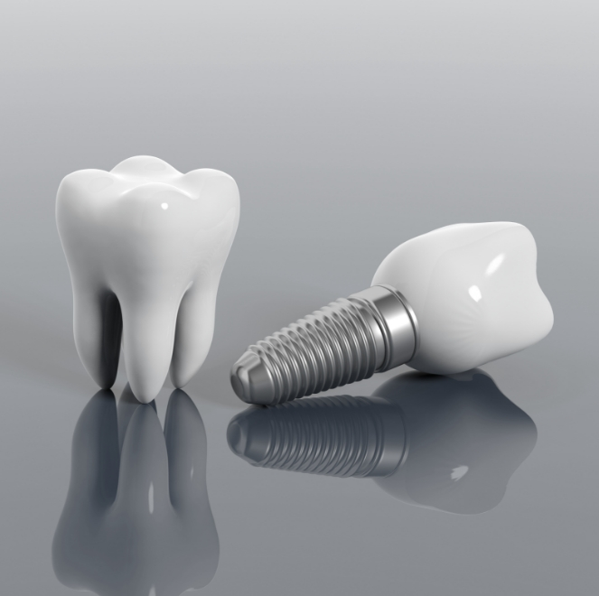 Animated tooth and implant supported dental crown