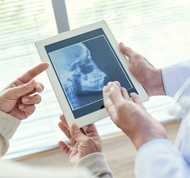 Dentists using skull and jaw x-rays to dignose TMJ dysfunction